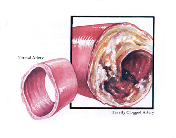 graphic of artery clogged with atherosclerosis