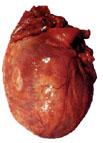 thumbnail cardiomyopathy